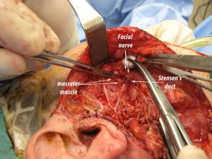 Nervo Faciale VII Paio n. cranici