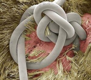 Punto di sutura visto al microscopio