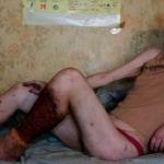 Effetti della droga sui tossicodipendenti