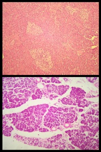 Confronto tra un pancreas normale e uno appartenente ad un soggetto diabetico