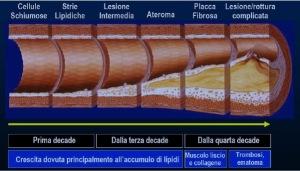 colesterolo, placche ateromatosiche, formazione