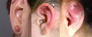 Esiti cicatriziali (a sx) normali (al centro) ed infiammatori (a dx) di un comune piercing