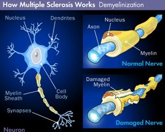 Processo patologico sclerosi multipla
