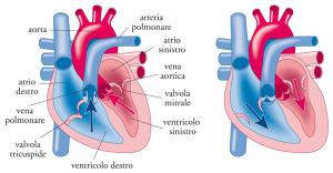 Schema della trasposizione delle grandi arterie