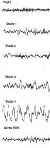 EEG Durante il sonno