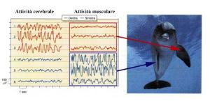 Relazione EEG ed Elettromiografia
