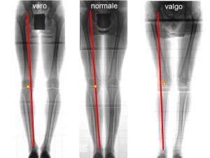 Deformità del ginocchio