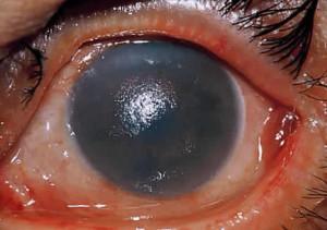Esempio di ustione chimica della cornea