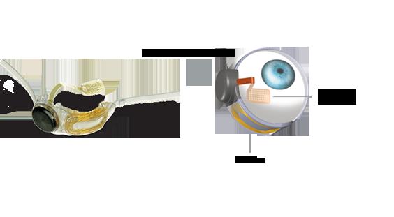 eye_it