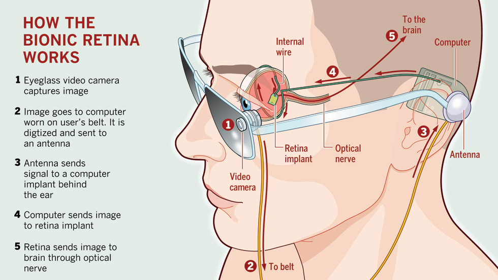retinal-implant-infographic