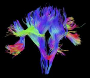 Figura 3. Diffusion Tensor Imaging