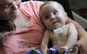 Kaiba è stato il primo bambino a ricevere lo splint